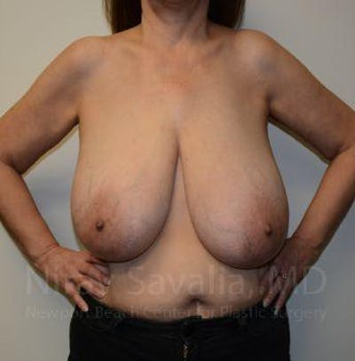 Breast Reduction Gallery - Patient 1655539 - Image 1