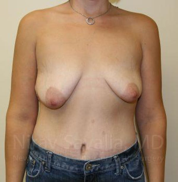 Breast Lift with Implants Gallery - Patient 1655538 - Image 1