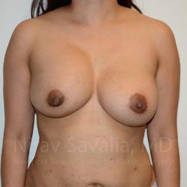 Breast Implant Revision Gallery - Patient 1655541 - Image 1
