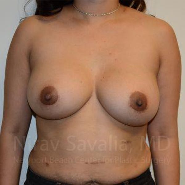 Breast Implant Revision Gallery - Patient 1655541 - Image 2