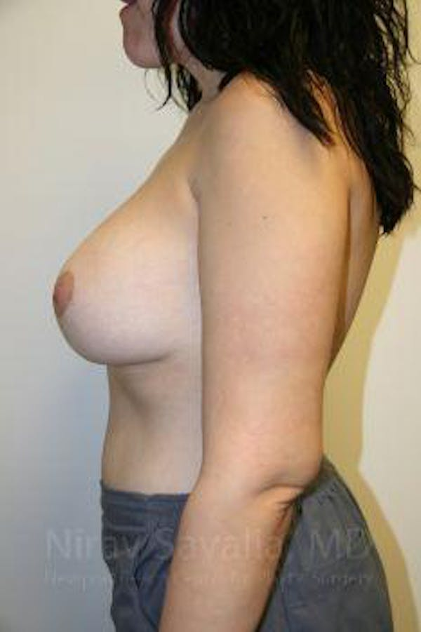Breast Lift with Implants Gallery - Patient 1655538 - Image 4