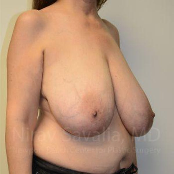 Breast Reduction Gallery - Patient 1655539 - Image 9