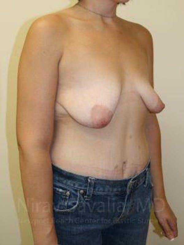 Breast Lift with Implants Gallery - Patient 1655538 - Image 5