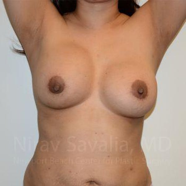 Breast Implant Revision Gallery - Patient 1655541 - Image 3