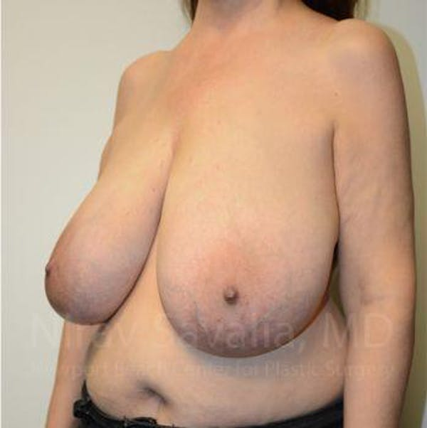 Breast Reduction Gallery - Patient 1655539 - Image 11