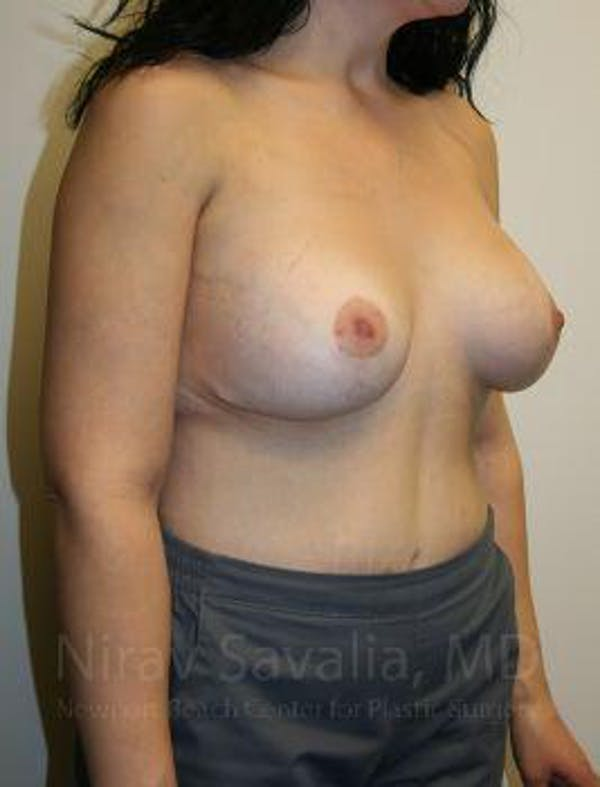 Breast Lift with Implants Gallery - Patient 1655538 - Image 6