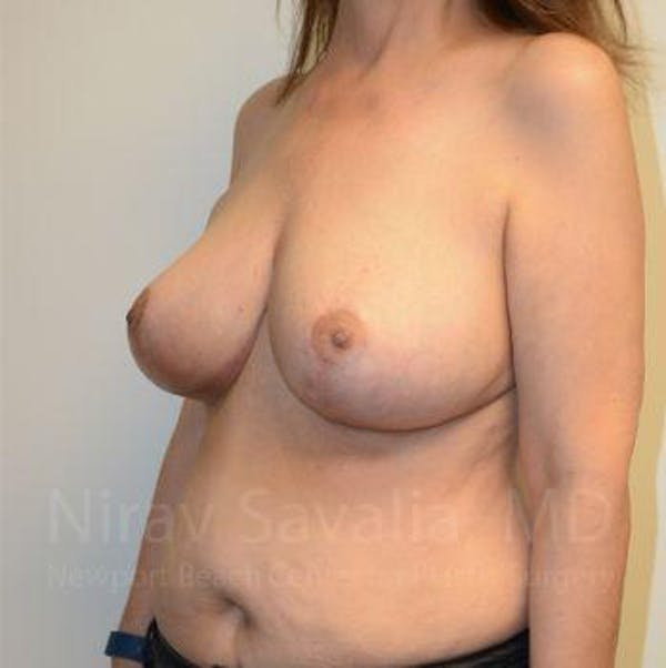 Breast Reduction Gallery - Patient 1655539 - Image 12