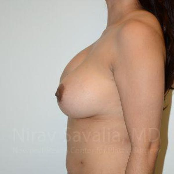 Breast Implant Revision Gallery - Patient 1655541 - Image 7