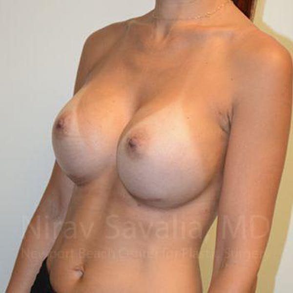 Breast Augmentation Gallery - Patient 1655540 - Image 8