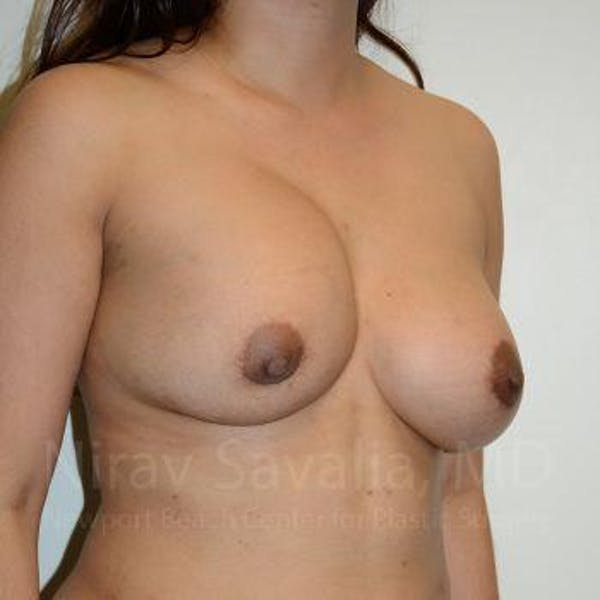 Breast Implant Revision Gallery - Patient 1655541 - Image 9