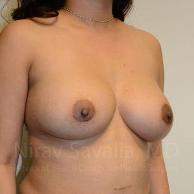 Breast Implant Revision Gallery - Patient 1655541 - Image 10