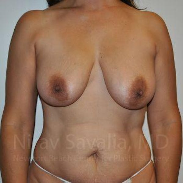 Breast Lift with Implants Gallery - Patient 1655542 - Image 1