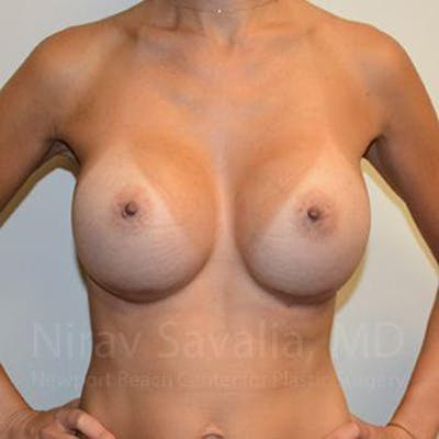 Breast Augmentation Gallery - Patient 1655540 - Image 12