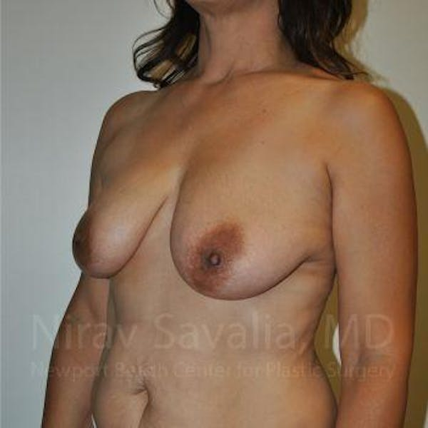 Breast Lift with Implants Gallery - Patient 1655542 - Image 5