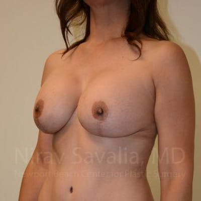 Breast Lift with Implants Gallery - Patient 1655542 - Image 6