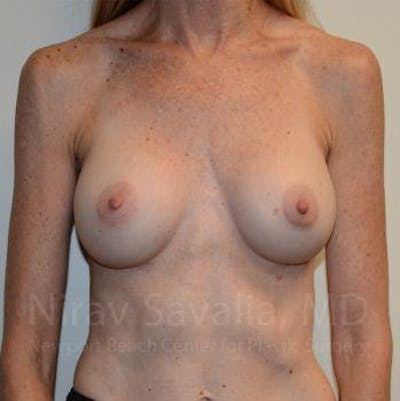 Breast Implant Revision Gallery - Patient 1655543 - Image 1