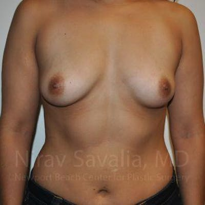 Breast Augmentation Gallery - Patient 1655544 - Image 1