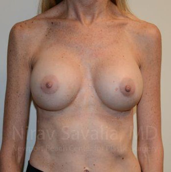 Breast Implant Revision Gallery - Patient 1655543 - Image 2