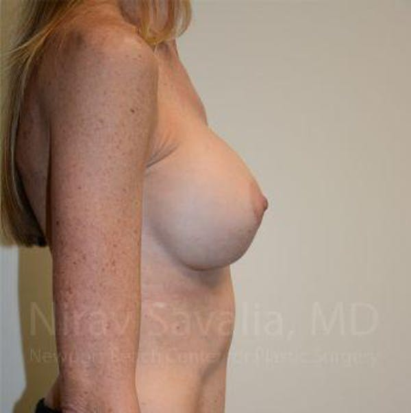 Breast Implant Revision Gallery - Patient 1655543 - Image 4