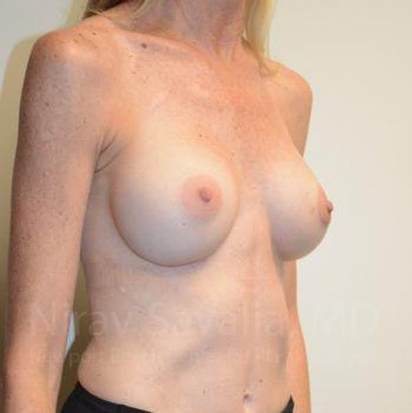 Breast Implant Revision Gallery - Patient 1655543 - Image 5