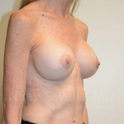 Breast Implant Revision Gallery - Patient 1655543 - Image 6