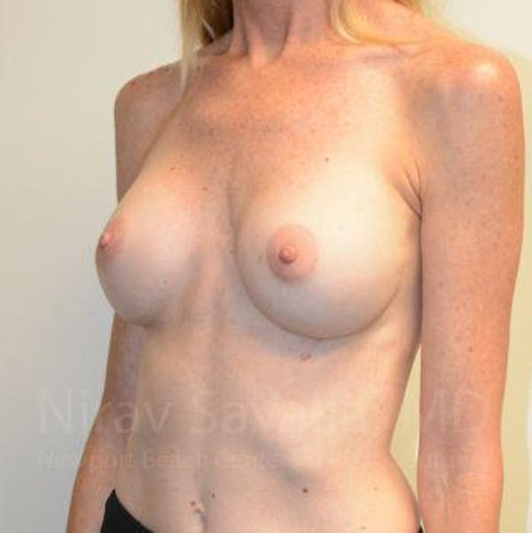 Breast Implant Revision Gallery - Patient 1655543 - Image 7