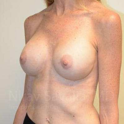 Breast Implant Revision Gallery - Patient 1655543 - Image 8