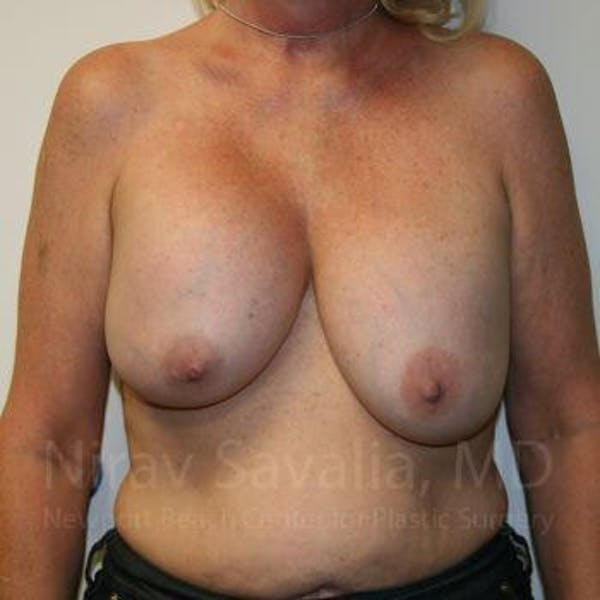 Breast Implant Revision Gallery - Patient 1655545 - Image 1