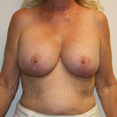 Breast Implant Revision Gallery - Patient 1655545 - Image 2