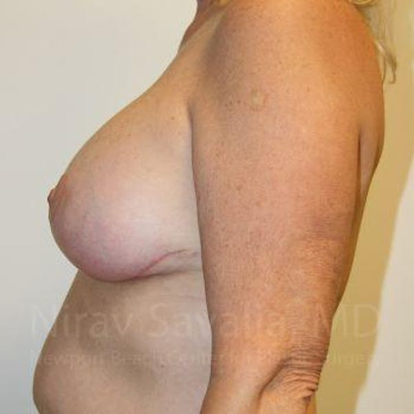 Breast Implant Revision Gallery - Patient 1655545 - Image 4