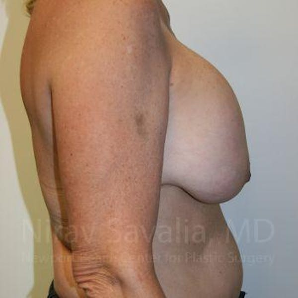 Breast Implant Revision Gallery - Patient 1655545 - Image 5