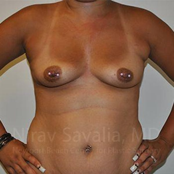 Breast Augmentation Gallery - Patient 1655546 - Image 3