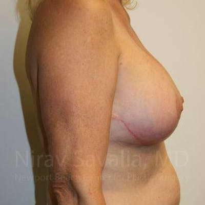 Breast Implant Revision Gallery - Patient 1655545 - Image 6