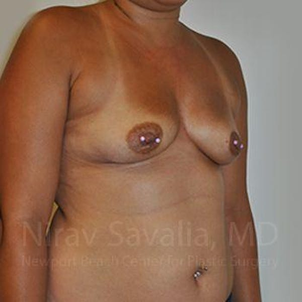 Breast Augmentation Gallery - Patient 1655546 - Image 5