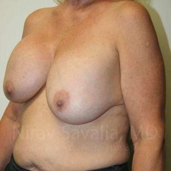 Breast Implant Revision Gallery - Patient 1655545 - Image 7