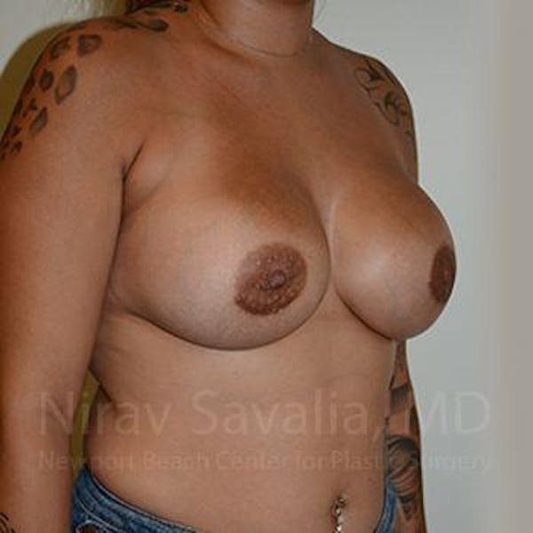 Breast Augmentation Gallery - Patient 1655546 - Image 6