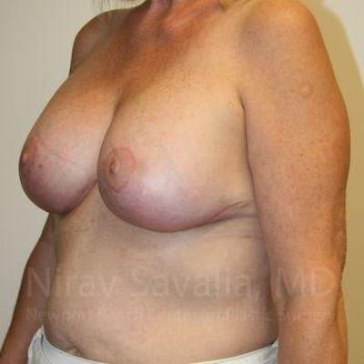 Breast Implant Revision Gallery - Patient 1655545 - Image 8