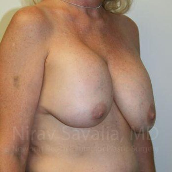 Breast Implant Revision Gallery - Patient 1655545 - Image 9