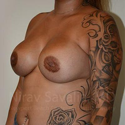 Breast Augmentation Gallery - Patient 1655546 - Image 8