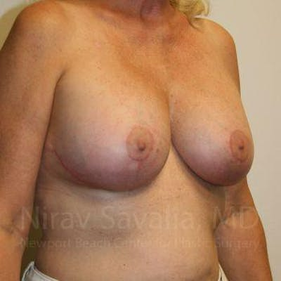Breast Implant Revision Gallery - Patient 1655545 - Image 10
