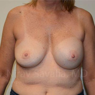 Breast Implant Revision Gallery - Patient 1655547 - Image 1