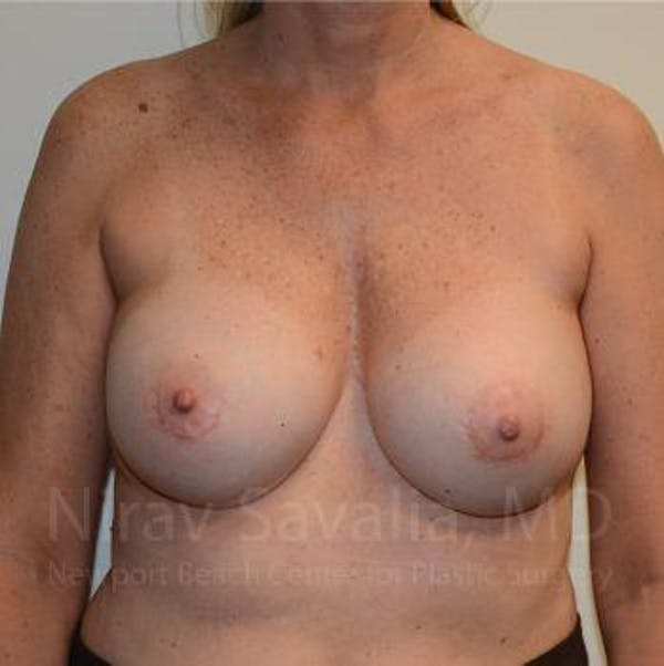Breast Implant Revision Gallery - Patient 1655547 - Image 2