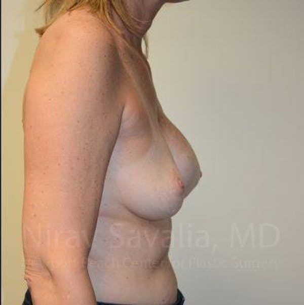 Breast Implant Revision Gallery - Patient 1655547 - Image 3