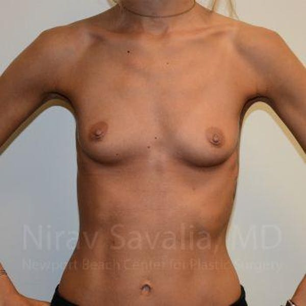 Breast Augmentation Gallery - Patient 1655548 - Image 1