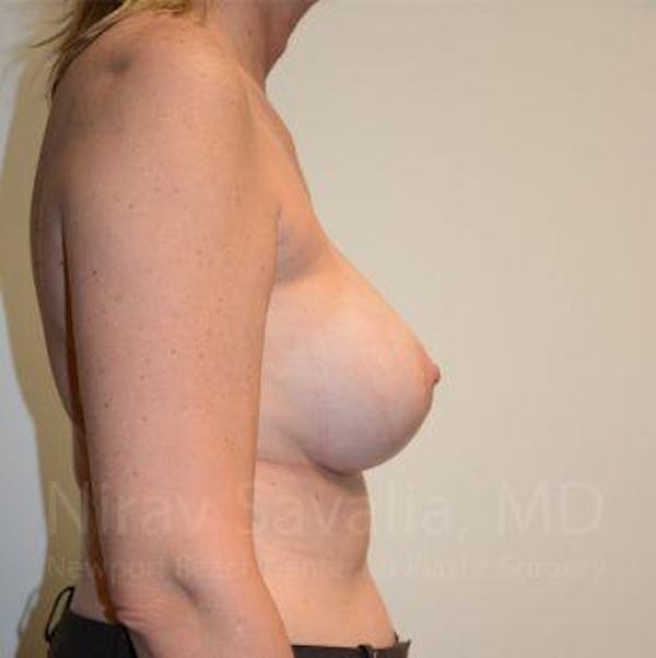 Breast Implant Revision Gallery - Patient 1655547 - Image 4