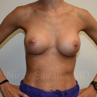 Breast Augmentation Gallery - Patient 1655548 - Image 2