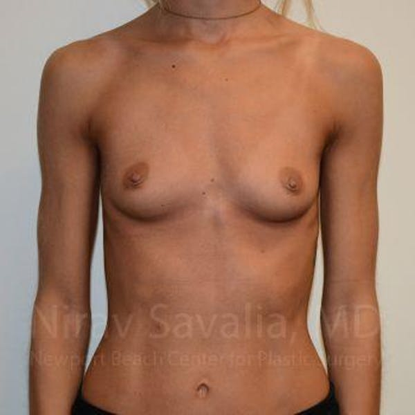 Breast Augmentation Gallery - Patient 1655548 - Image 3