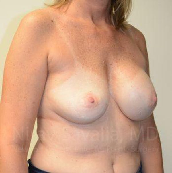 Breast Implant Revision Gallery - Patient 1655547 - Image 7