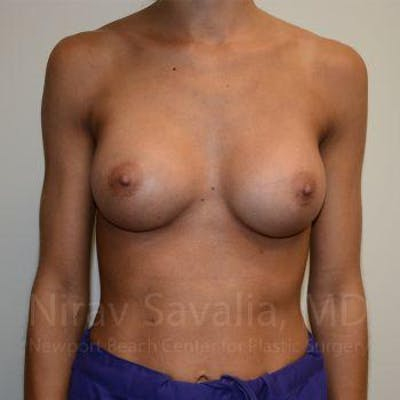 Breast Augmentation Gallery - Patient 1655548 - Image 4
