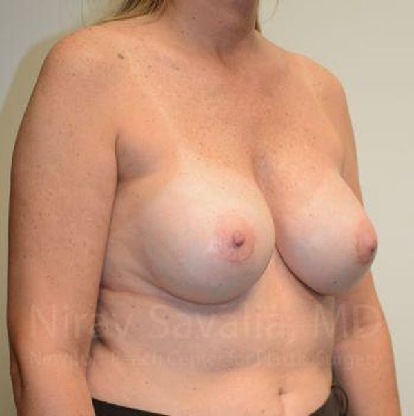 Breast Implant Revision Gallery - Patient 1655547 - Image 8